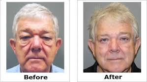 eye bag removal before and after male