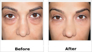 eye bag removal before and after female